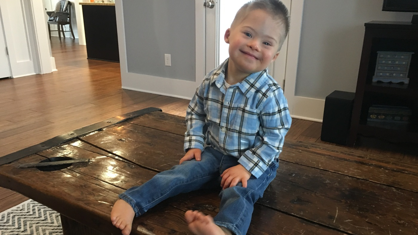 Down Syndrome Families Divided Over Abortion Ban