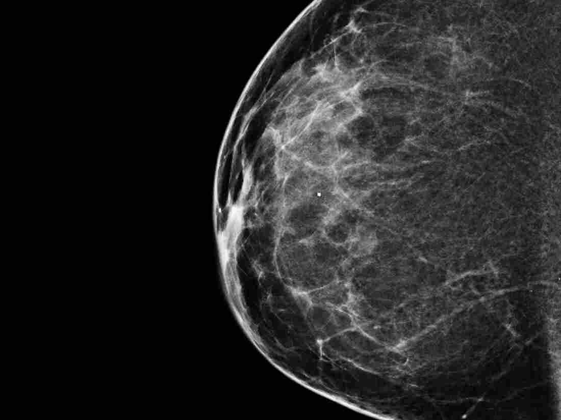 Mammograms: WhoNeedsThem photo