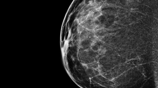 A 3-D mammogram reveals a normal breast.