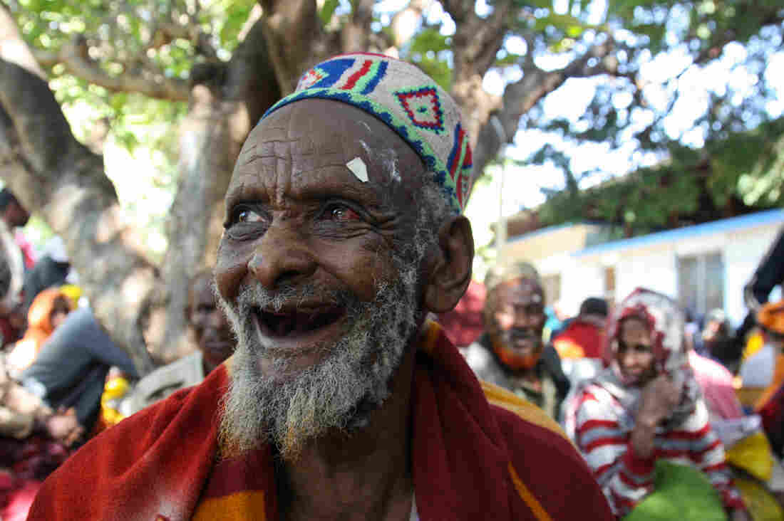 The Miracle Of Cataract Surgery: The Blind Can See Again