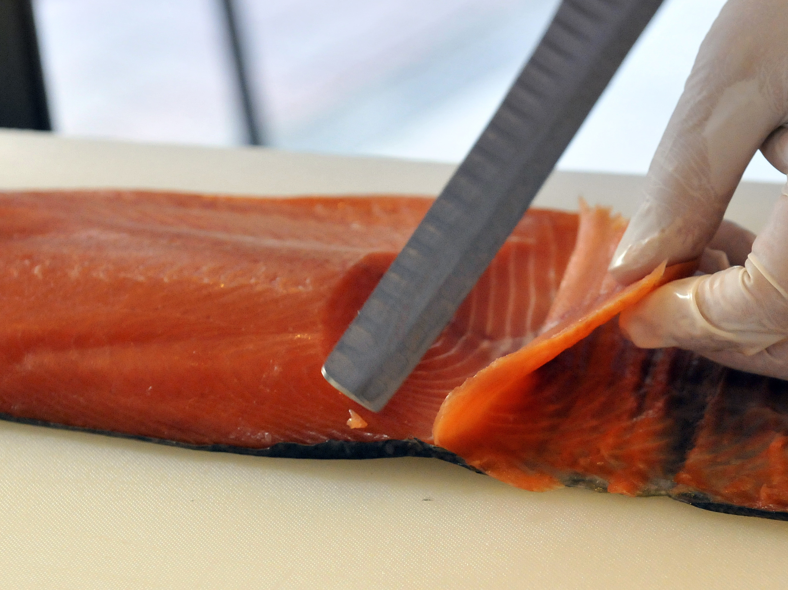 Sushi lover pulled 5-foot tapeworm from intestines