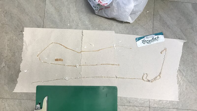 Man Pulls 5 1/2-Foot-Long Tapeworm Out Of His Body, Blames