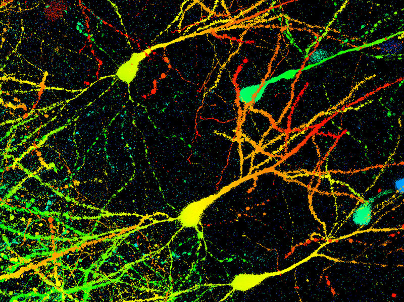 Researchers Discover Anxiety Cells In >> Anxiety Neurons Found In Brains Shots Health News Npr