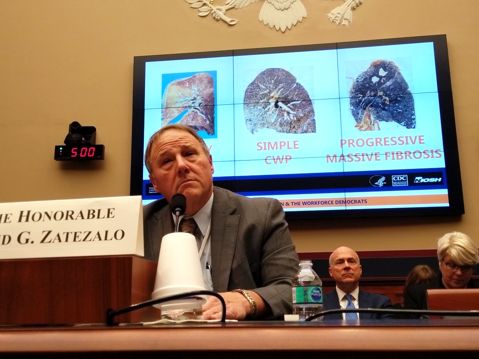 David Zatezalo, the Assistant Secretary of Labor for Mine Safety and Health, was asked about the advanced black lung epidemic at a congressional hearing in Washington, D.C., on Feb. 6, 2018. (Huo Jingnan/NPR)