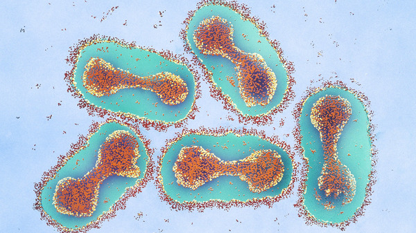 Smallpox virus, colorized and magnified in this micrograph 42,000 times, is the real concern for synthetic biologists working on a cousin virus — horsepox. They