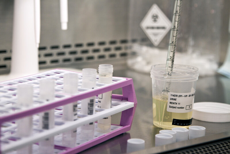 Sunset Labs Bill For Drug Test Stuns Texas Student Shots Health