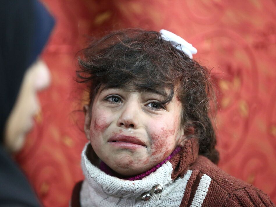 Hala, 9, receives treatment at a makeshift hospital following Syrian government bombardments on rebel-held town of Saqba, in Eastern Ghouta, on Thursday. (Amer Almohibany/AFP/Getty Images)