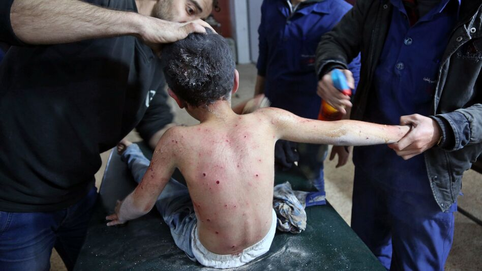 A wounded Syrian boy receives treatment at a makeshift hospital following attacks on the rebel-held town of Hamouria, in the besieged Eastern Ghouta region on the outskirts of the capital Damascus, on Monday. (Abdulmonam Eassa/AFP/Getty Images)