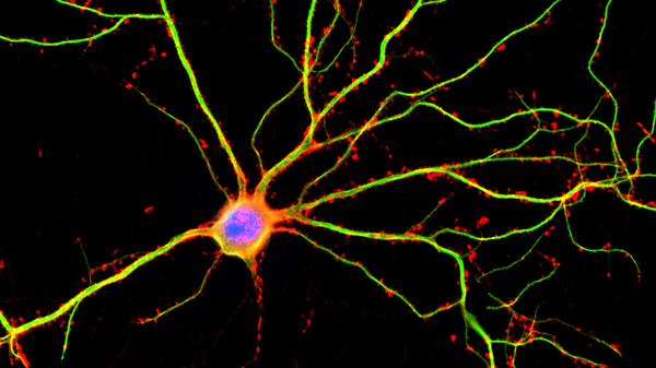 Sorry, Adults, No New Neurons For Your Aging Brains