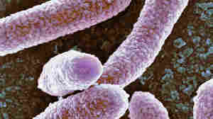 Federal Efforts To Control Rare And Deadly Bacteria Working