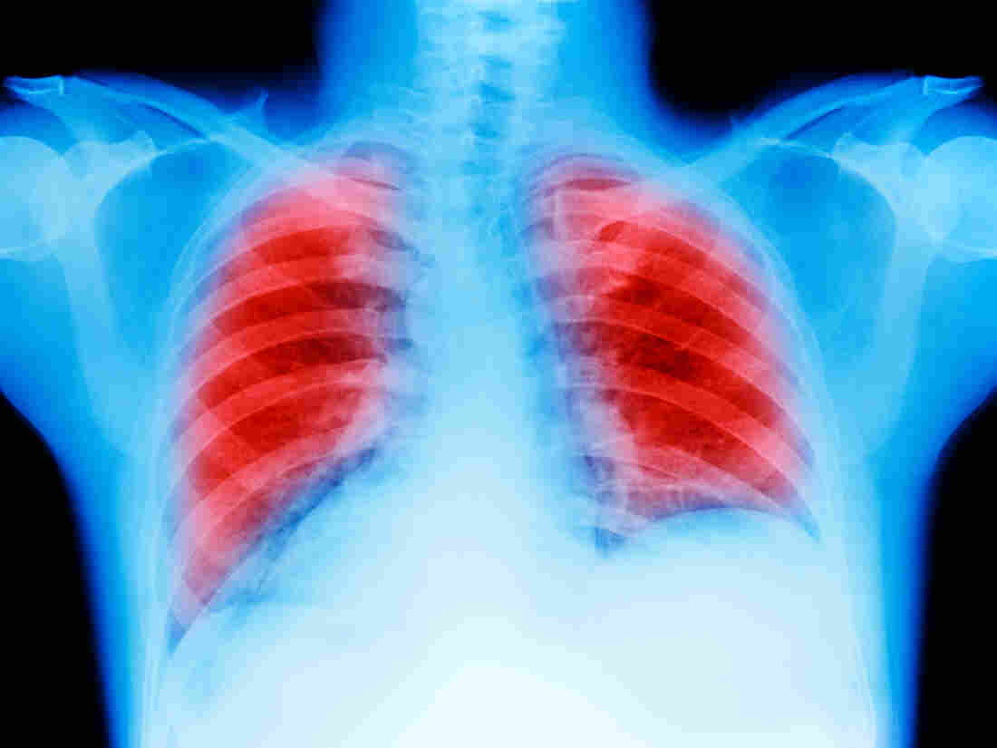 Treatment combo almost doubles survival time in lung cancer patients, study finds