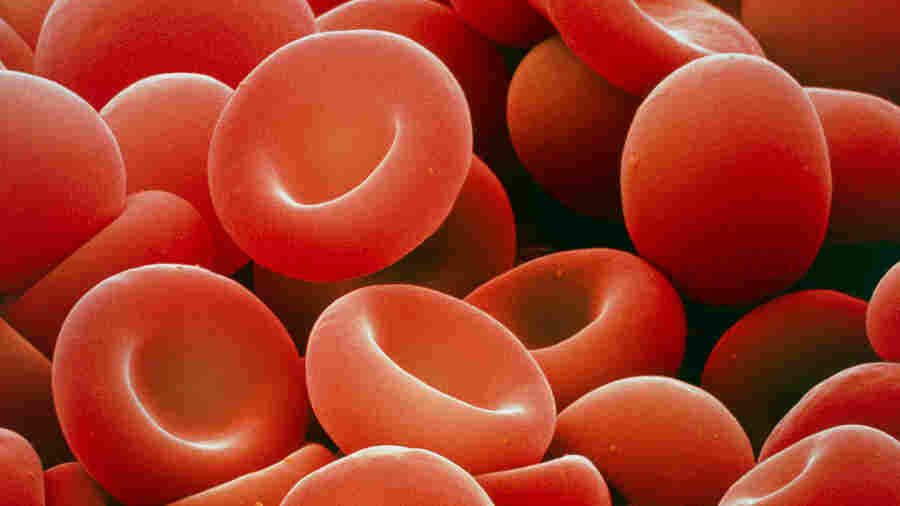Gene Therapy For Inherited Blood Disorder Reduced Transfusions