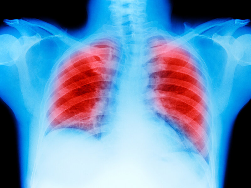 Keytruda Plus Chemotherapy More Effective For Lung Cancer