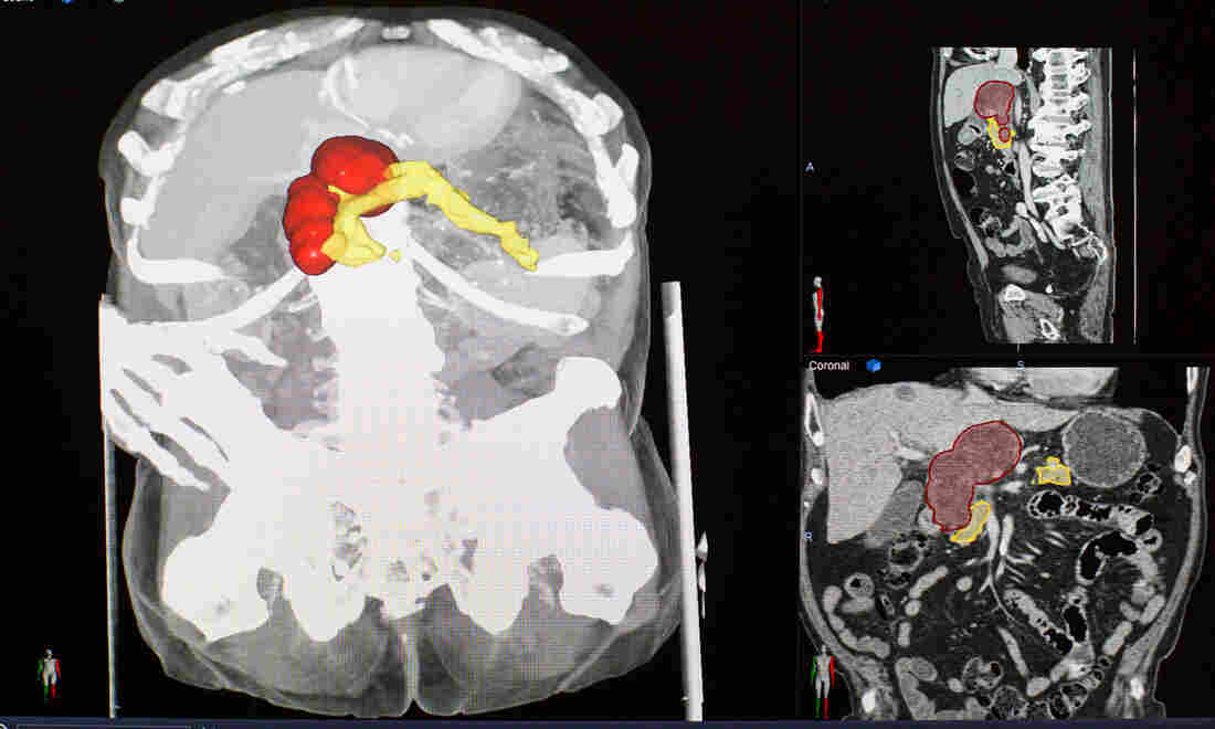 For Some Hard-To-Find Tumors, Doctors See Promise In Artificial Intelligence | Tech News 4