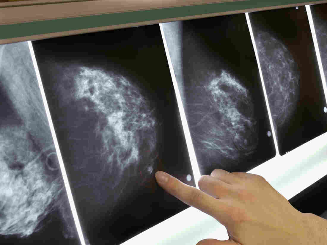 In a remarkable first, woman's advanced breast cancer is eradicated