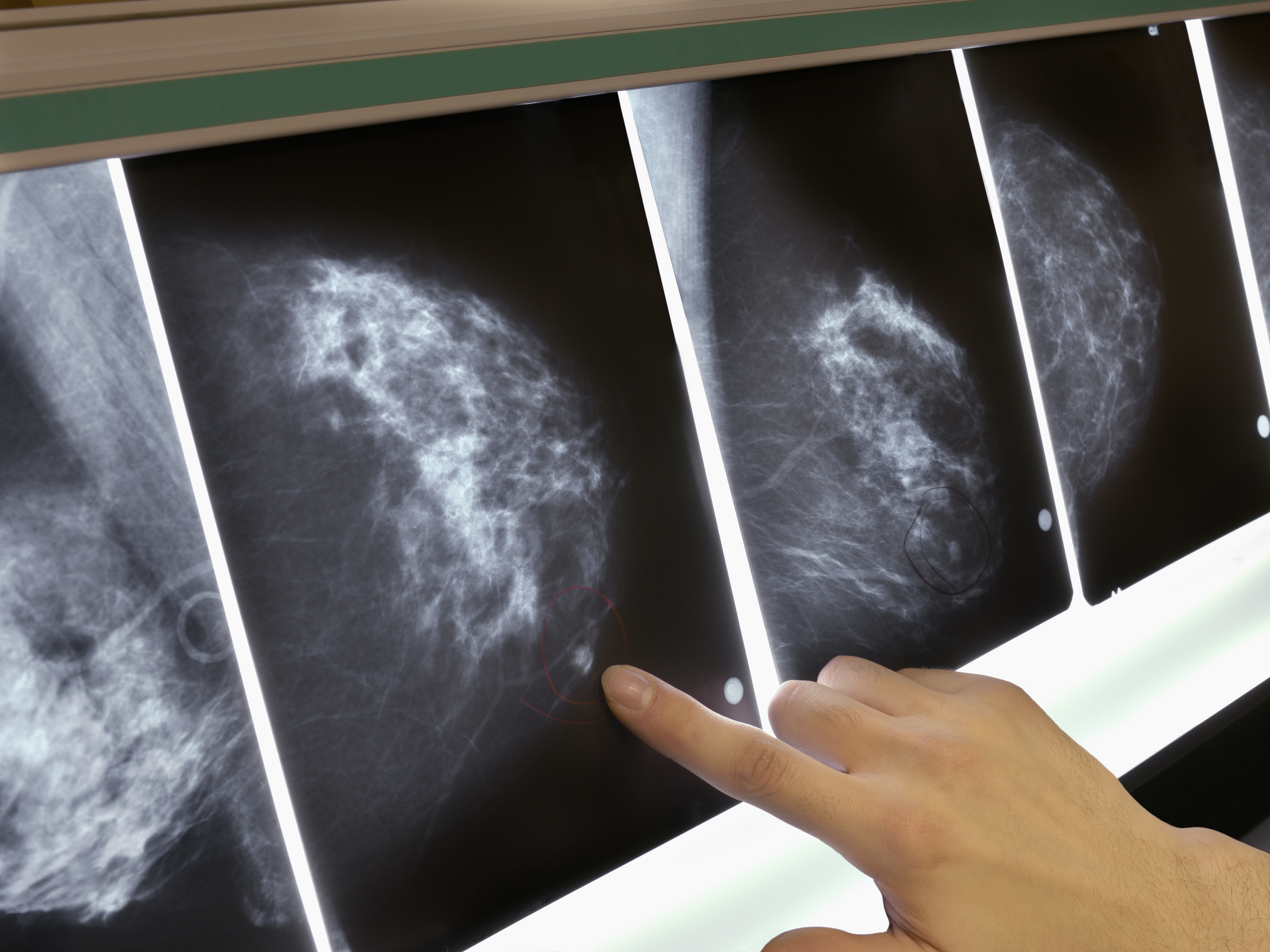 For Some Breast Cancer Patients, The Chemo Decision Just Got Easier