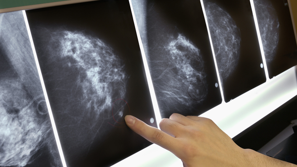 Women with a common form of breast cancer may be able to safely forgo chemotherapy, depending on the results of a genetic test.