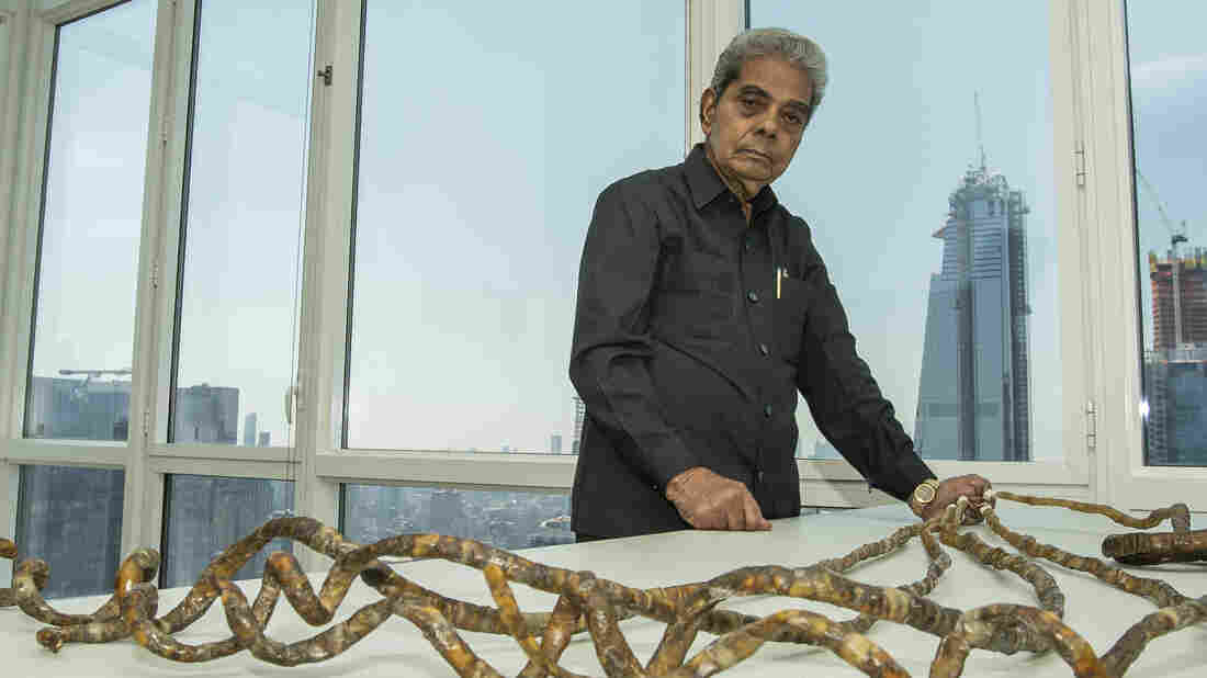 Man with World's Longest Fingernails Cuts Them After 66 years