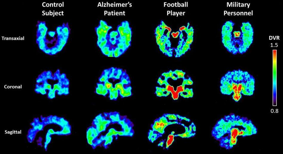 UCLA researchers are using a radioactive tracer, which binds to abnormal proteins in the brain, to see if it is possible to diagnose chronic traumatic encephalopathy in living patients. Warmer colors in these PET scans indicate higher concentrations of the tracer. (UCLA)