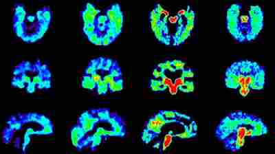 Scientists Hunt For A Test To Diagnose Chronic Brain Injury In Living People