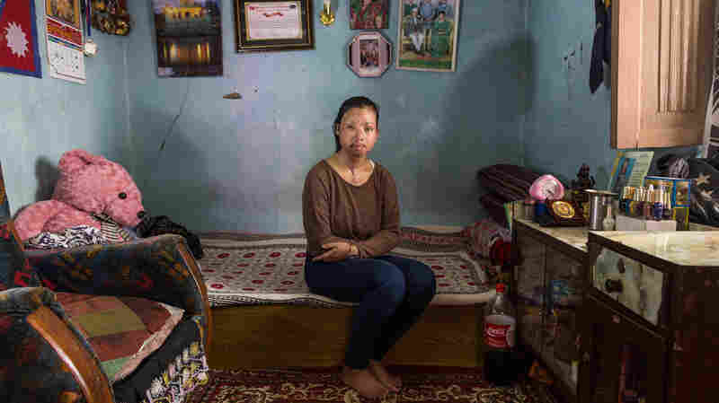 Survivor Of Acid Attack Helps Bring Change To Nepal's Criminal Code