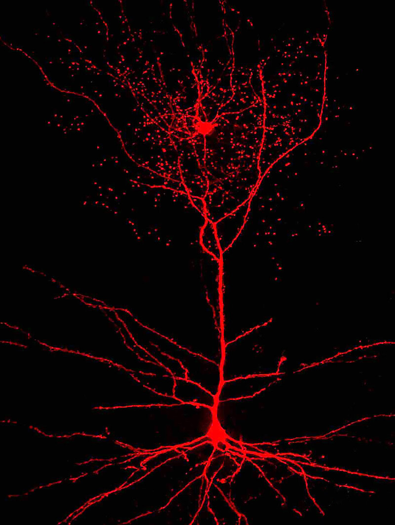 newly discovered rose hip neurons may be unique to humans shots