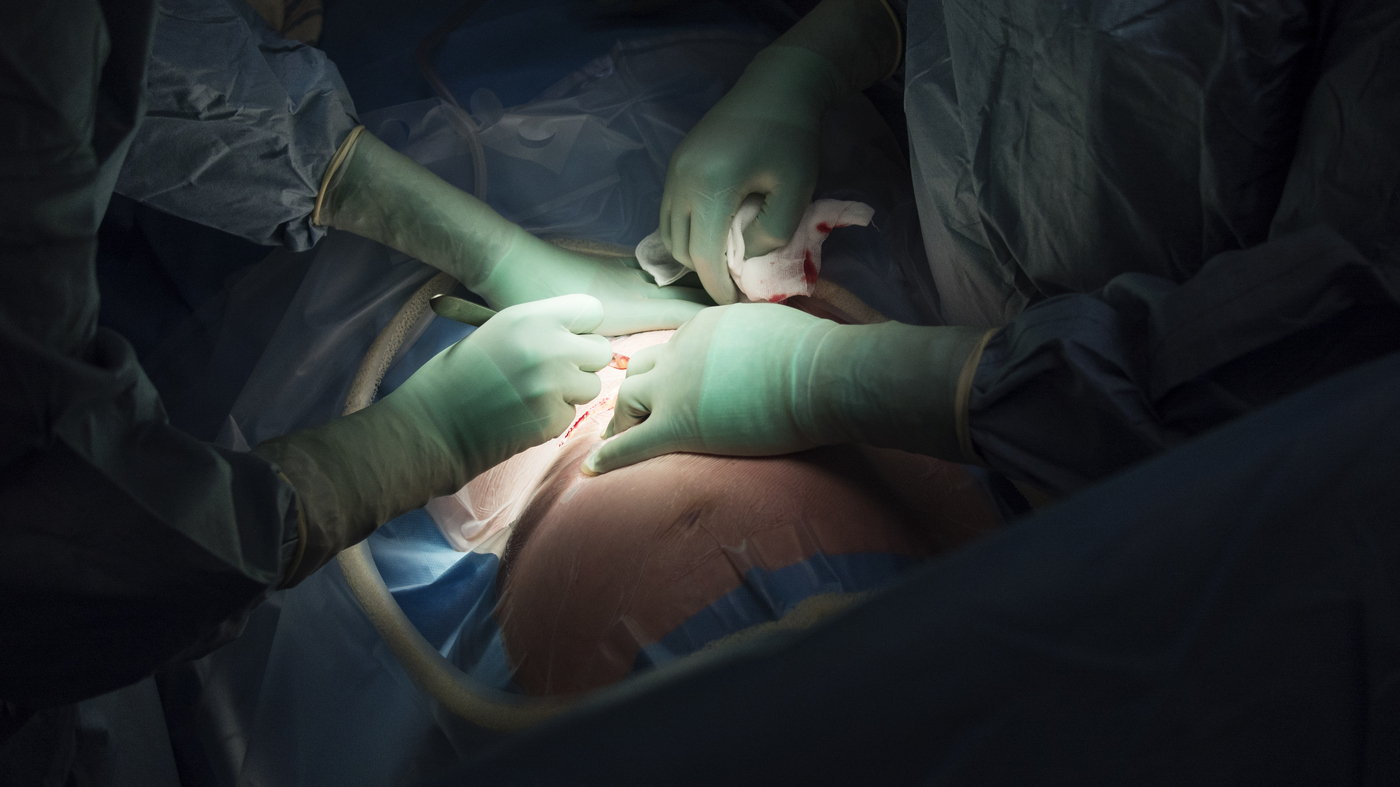 The Rate Of C-Sections Is Rising At An 'Alarming' Rate ...