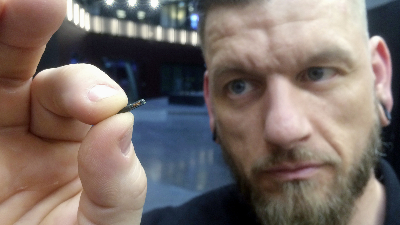 Thousands Of Swedes Are Inserting Microchips Under Their Skin