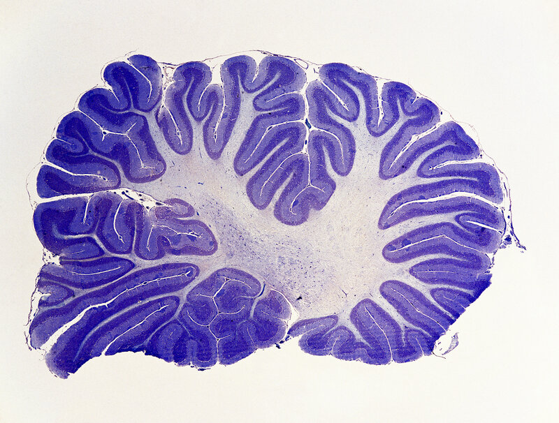 Cerebellum Plays Bigger Role In Human Thought Than