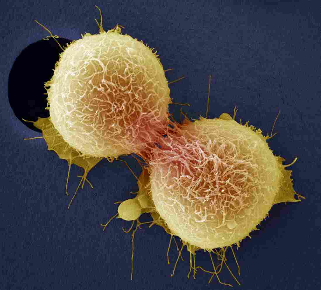 Minimally Invasive Sx May Up Mortality in Early Cervical Cancer