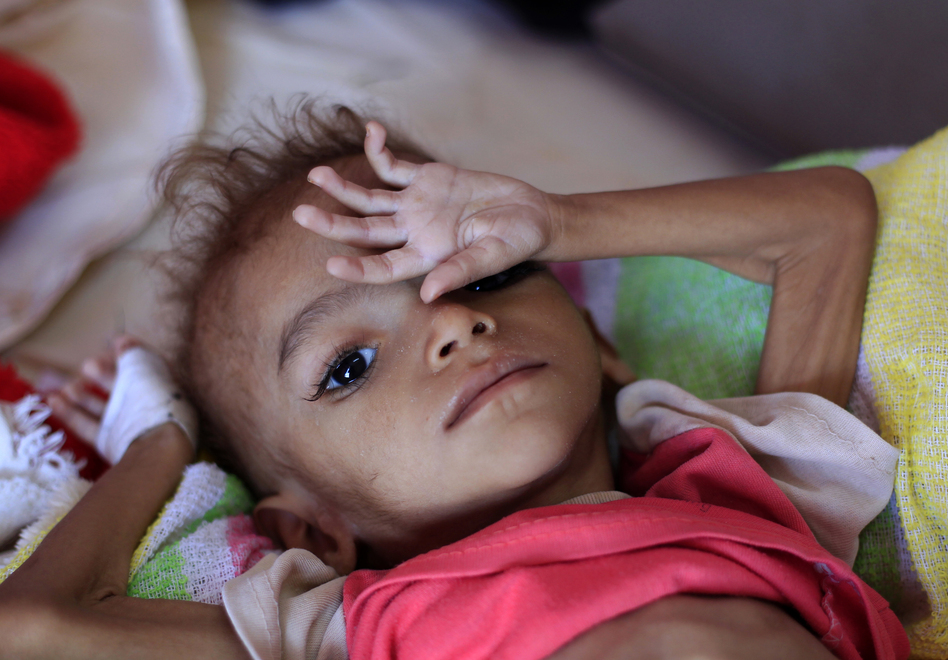 A Yemeni child suffering from malnutrition lies on a bed at a treatment center in a hospital in the capital, Sanaa. (Mohammed Huwais/Getty Images)