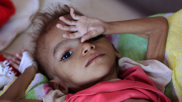 A Call For A Ceasefire In Yemen Makes News. Its Catastrophe Doesn t