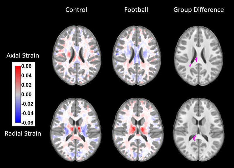 Football Affects Youth Brain >> Brain Changes Seen After A Single Season Of Youth Football Shots