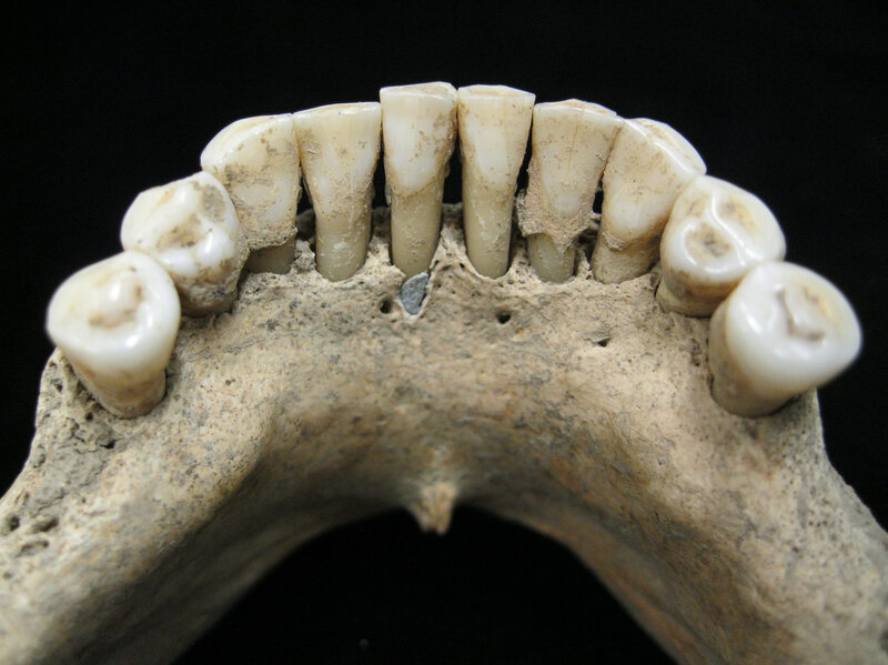 A Blue Clue In Medieval Teeth May Bespeak A Woman's Artistry Circa A.D. 1000 - image radini1hr-65762ad6fa45b781b879f2bdb11dc13fa509db19-s800-c85 on https://universegap.com