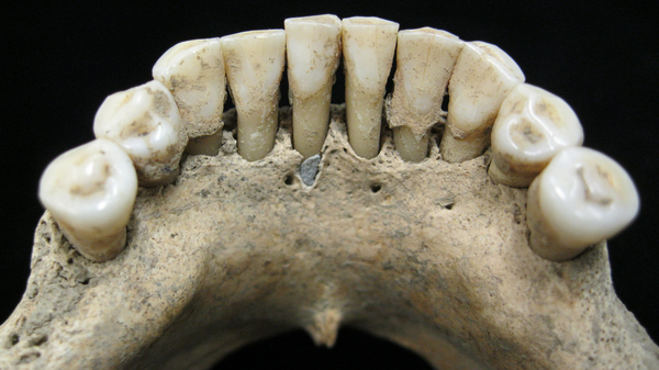 A bit of lapis lazuli — a rich blue pigment — is trapped within a central tooth
