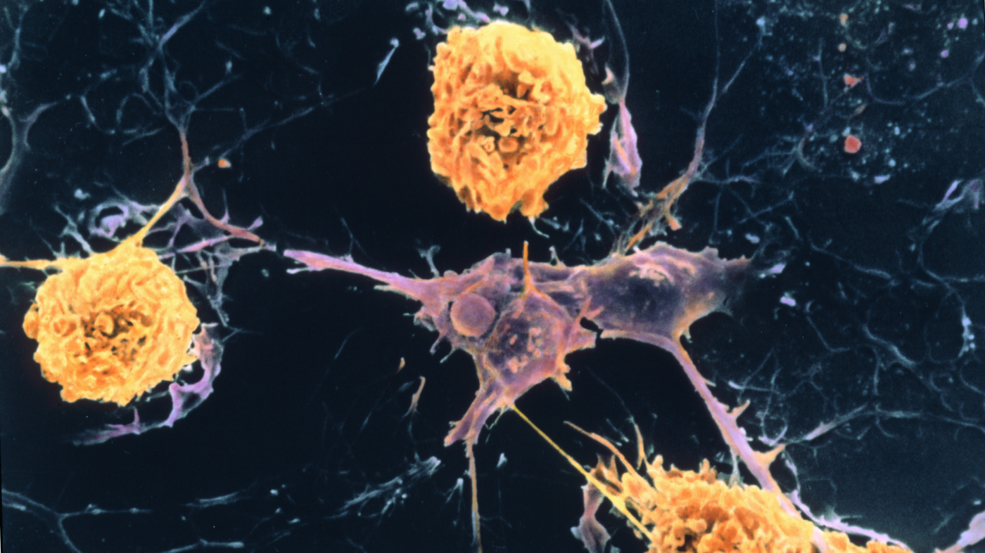 Researchers Find A Web Of Factors Behind Multiple Sclerosis