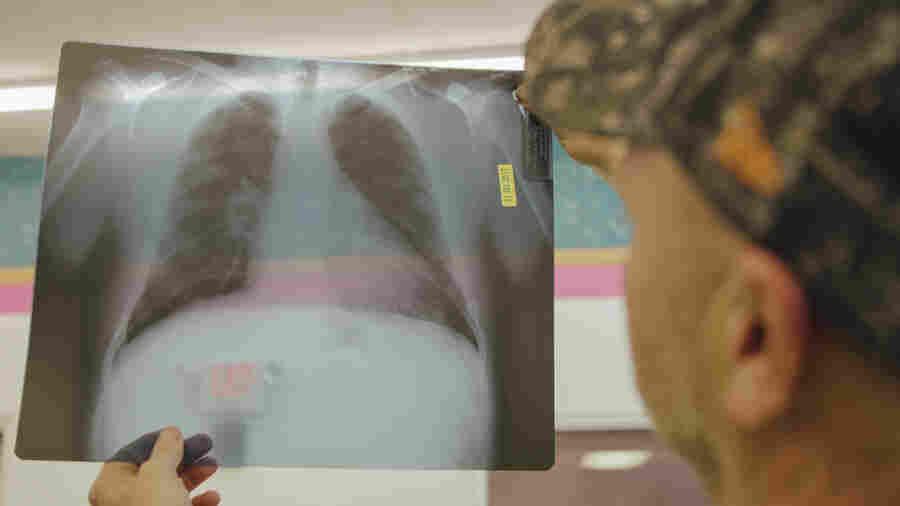 Calls For Change Follow NPR/'Frontline' Black Lung Investigation