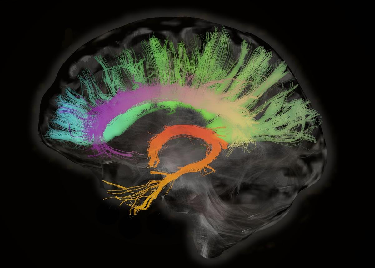 womens brains age more slowly than mens shots health