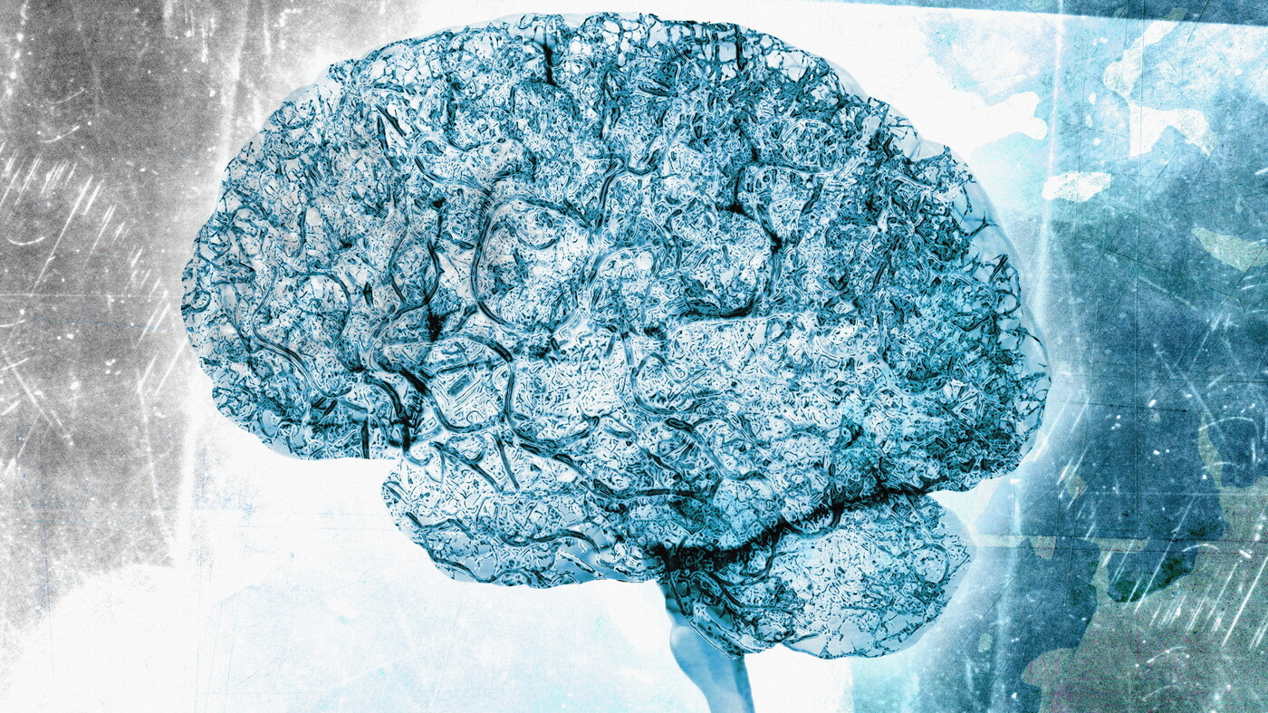 Is It Alzheimer's Or Another Dementia? The Right Answer Matters