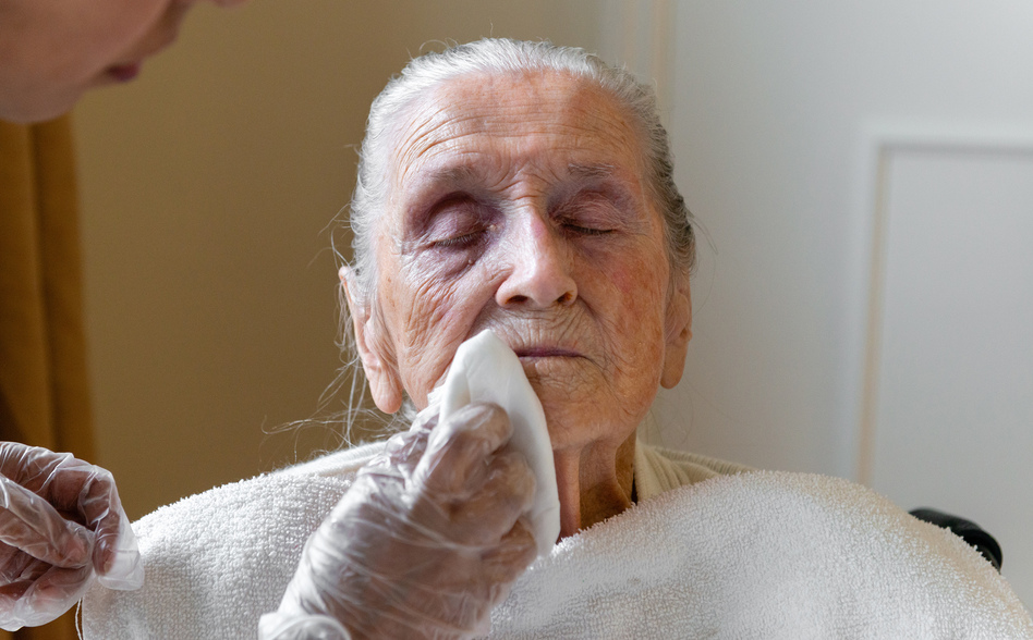 A certified nursing assistant wipes Neva Shinkle's face with chlorhexidine, an antimicrobial wash. Shinkle is a patient at Coventry Court Health Center, a nursing home in Anaheim, Calif., that is part of a multicenter research project aimed at stopping the spread of MRSA and CRE — two types of bacteria resistant to most antibiotics. (Heidi de Marco/KHN )