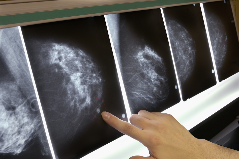 The out-of-pocket expense of mammograms, MRIs and other tests and treatments can be several thousand dollars each year when you have a high-deductible health policy. (Lester Lefkowitz/Getty Images)