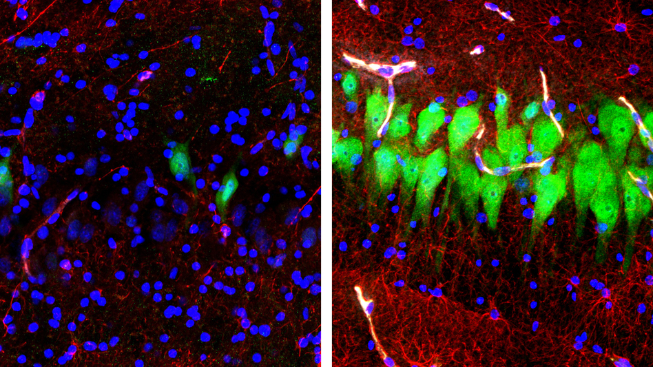 The image on the left shows the brains of pigs that were untreated for 10 hours after death, with neurons appearing as green, astrocytes as red and cell nuclei as blue. The image on the right shows cells in the same area of brains that, four hours after death, were hooked up to a system that the Yale University researchers call Brain<em>Ex</em>. (Stefano G. Daniele and Zvonimir Vrselja, Sestan Laboratory, Yale School of Medicine)