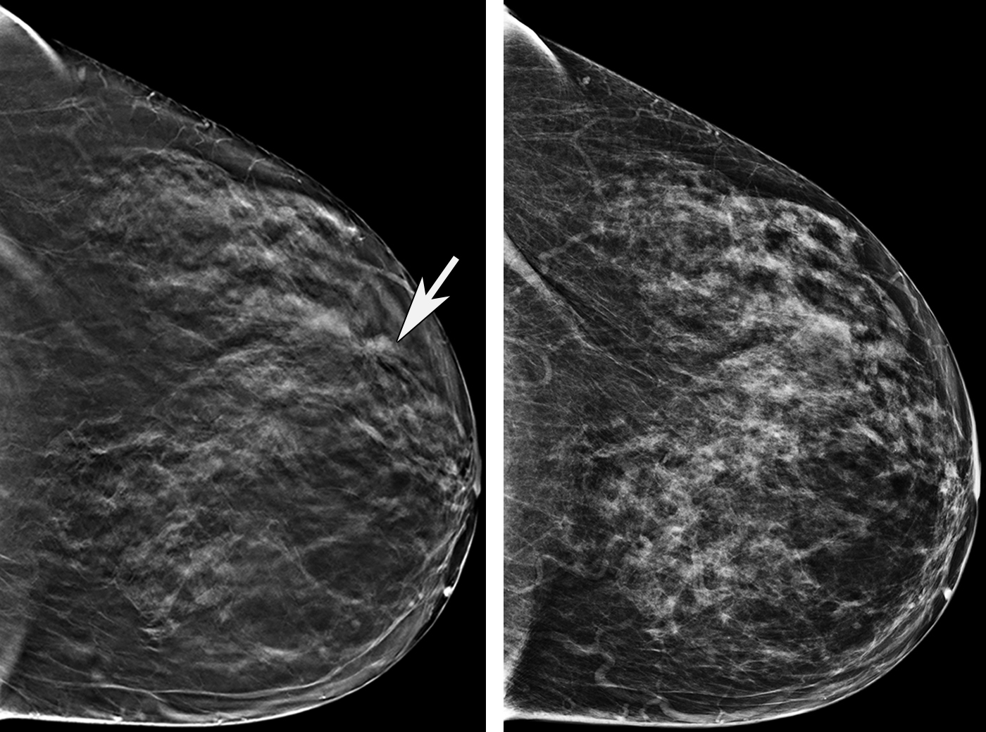 3d Mammography Creates More Precise Images To Detect Breast Cancer
