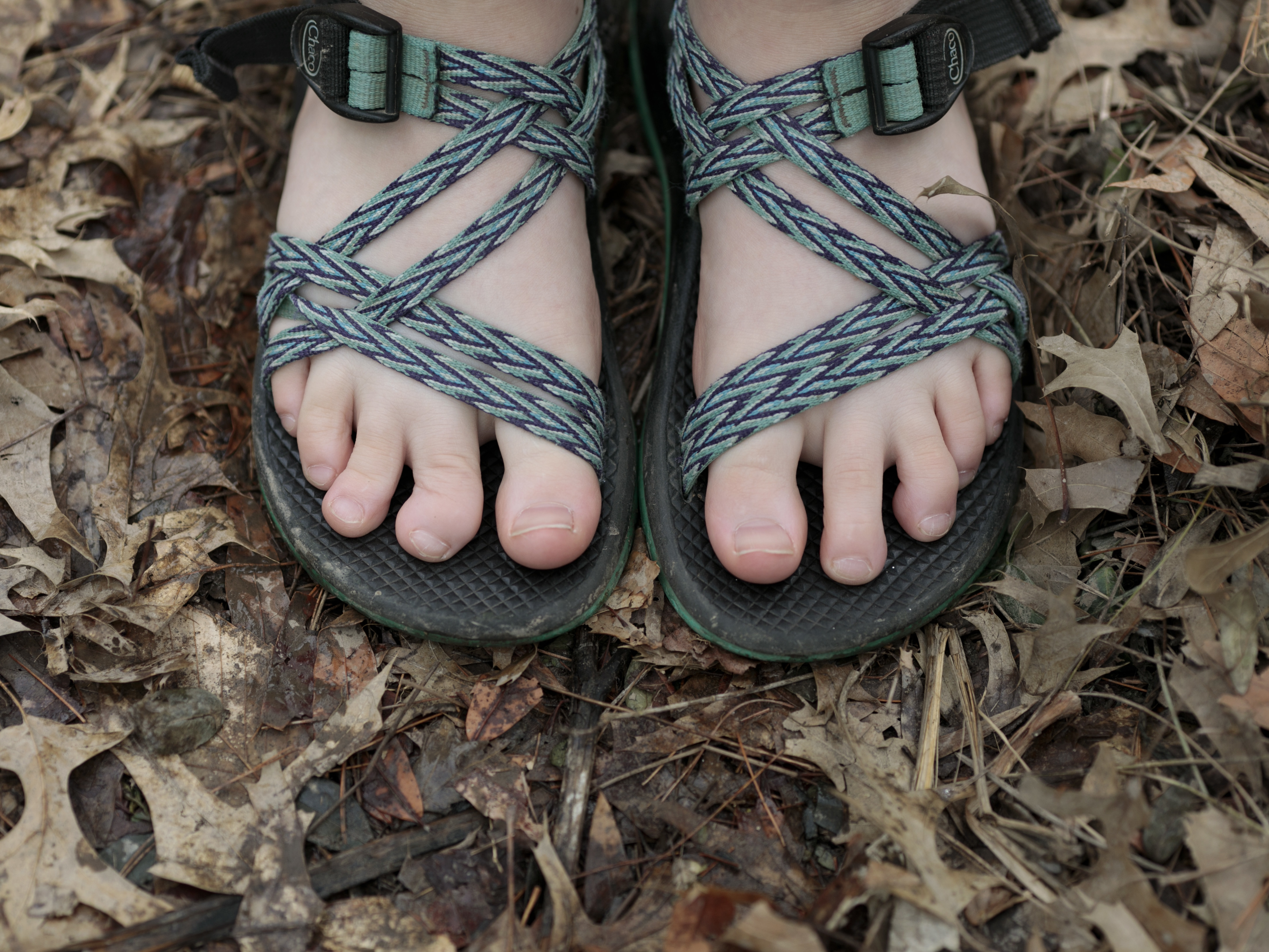 Oakley shows the toe on her right foot that a snakebite deformed when she was hiking at an Illinois summer camp in July 2018. These were the same shoes she wore when she was bitten.