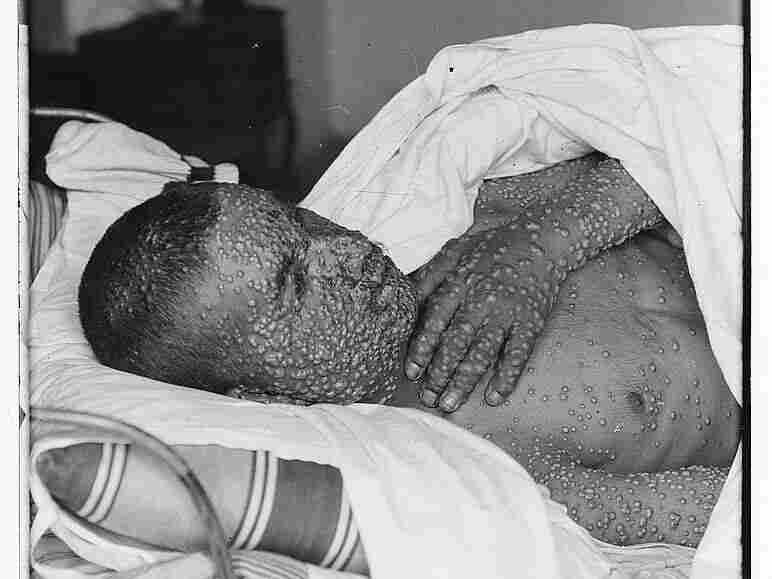 A man stricken by smallpox disease lies in bed. Smallpox killed about a quarter to a third of the people who became infected with it. In the 20th century alone, approximately 300 million people worldwide died from the disease.