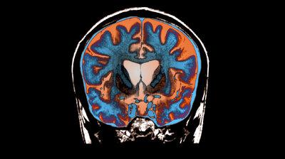 neuroscience : NPR