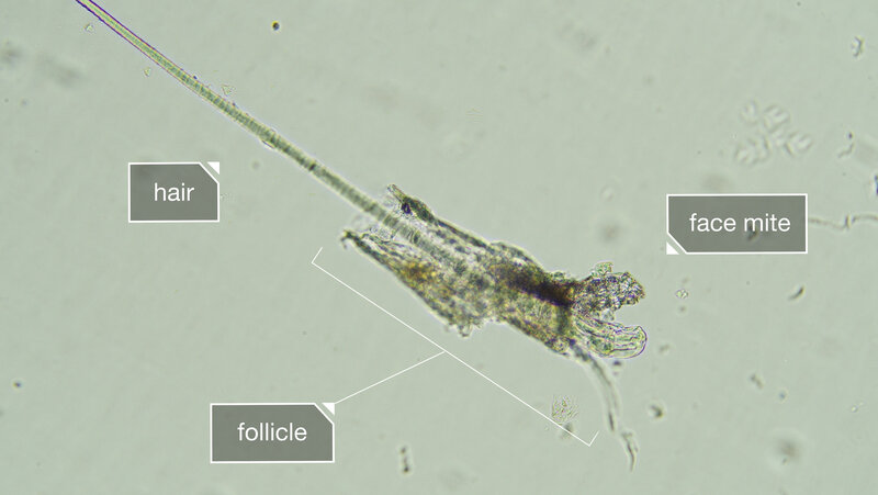 demodex folliculorum bbc