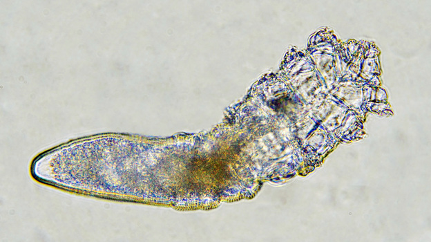 Just about every adult human alive has a population of<em> Demodex</em> mites living on them. (Deep Look/KQED)