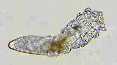 Meet The Mites That Live On Your Face