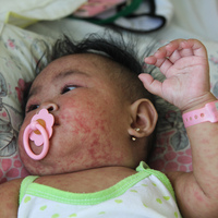 The Philippines Is Fighting One Of The World's Worst Measles Outbreaks